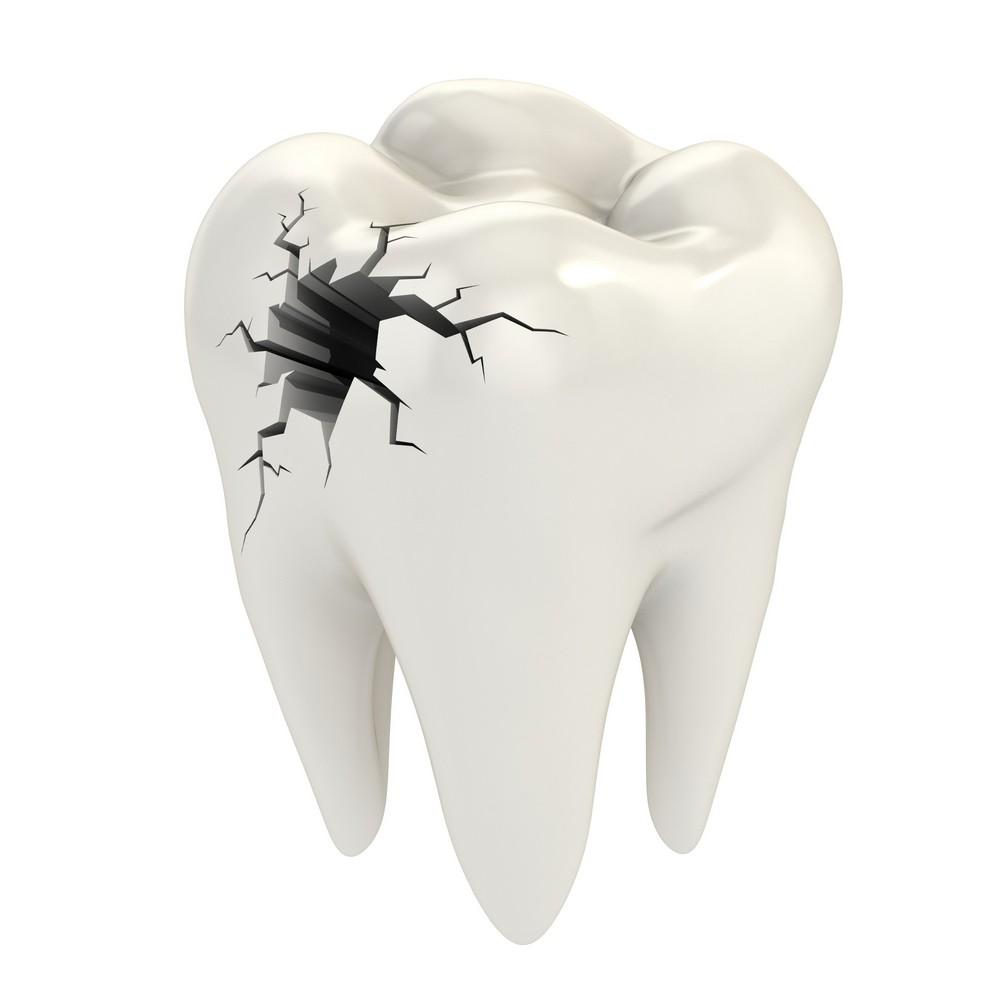 endodontie bucuresti, tratament canal bucuresti, stomatologie bucuresti, drm bucuresti