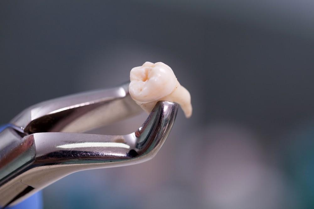 chirurgie dentara bucuresti, drm bucuresti, extractie dentara bucuresti, stomatologie bucuresti