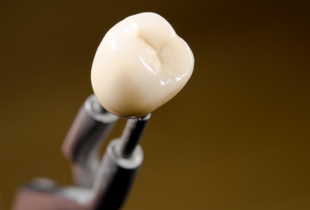 protetica dentara bucuresti, clinica drm, coroane dentare bucuresti, stomatologie bucuresti