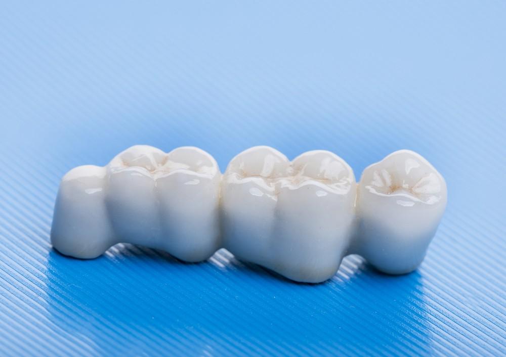 protetica dentara bucuresti, punte dentara bucuresti, stomatologie bucuresti, clinica drm bucuresti