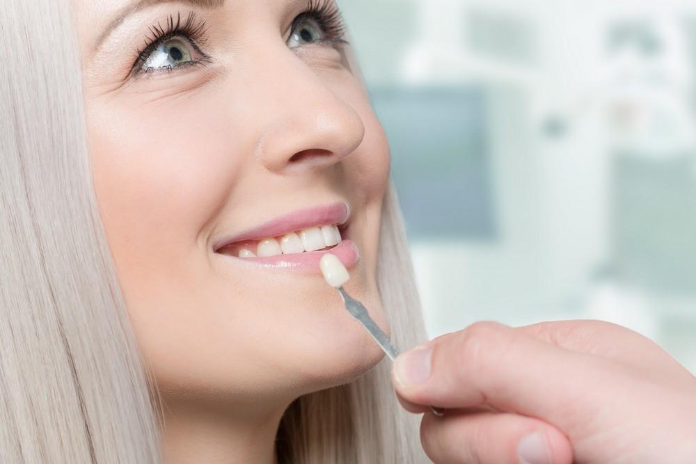 stomatologie bucuresti, estetica dentara bucuresti, fatete dentare bucuresti, drm bucuresti