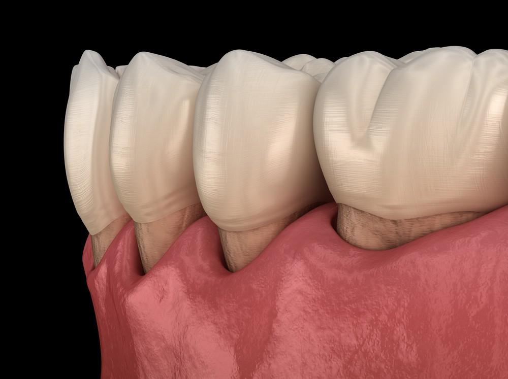 parodontologie bucuresti, stomatologie bucuresti, clinica drm bucuresti