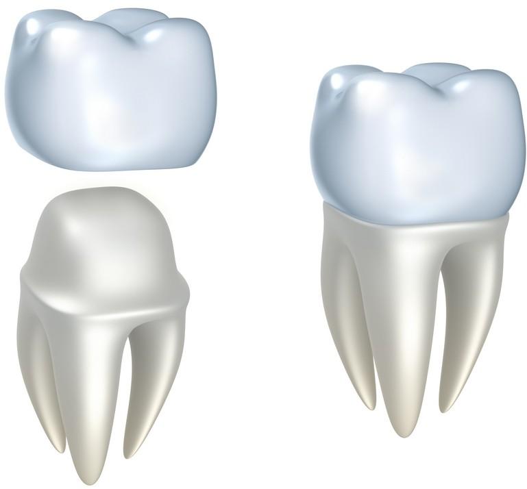 coroane dentare bucuresti, clinica drm, protetica dentara bucuresti, stomatologie bucuresti