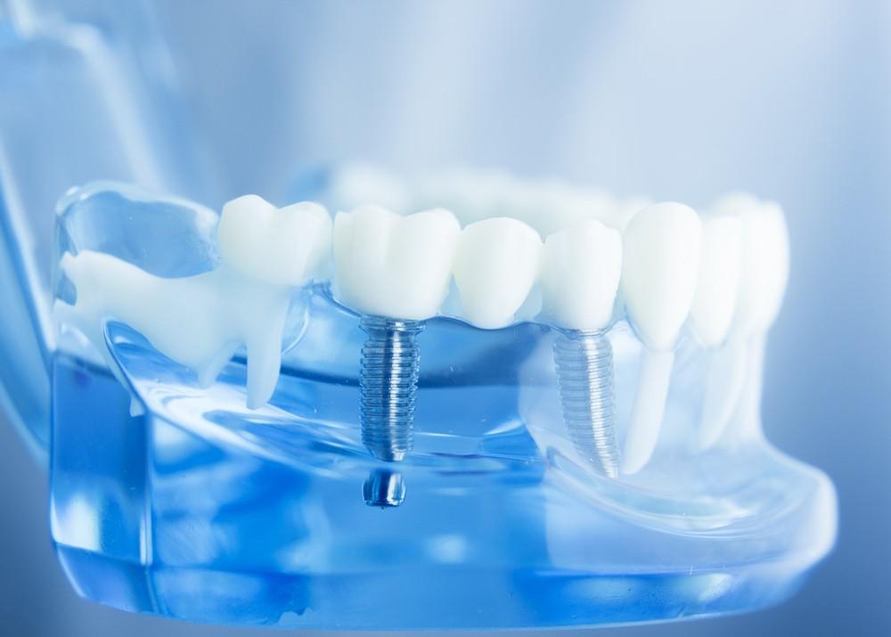 implant dentar bucuresti, stomatologie bucuresti, clinicadrm bucuresti