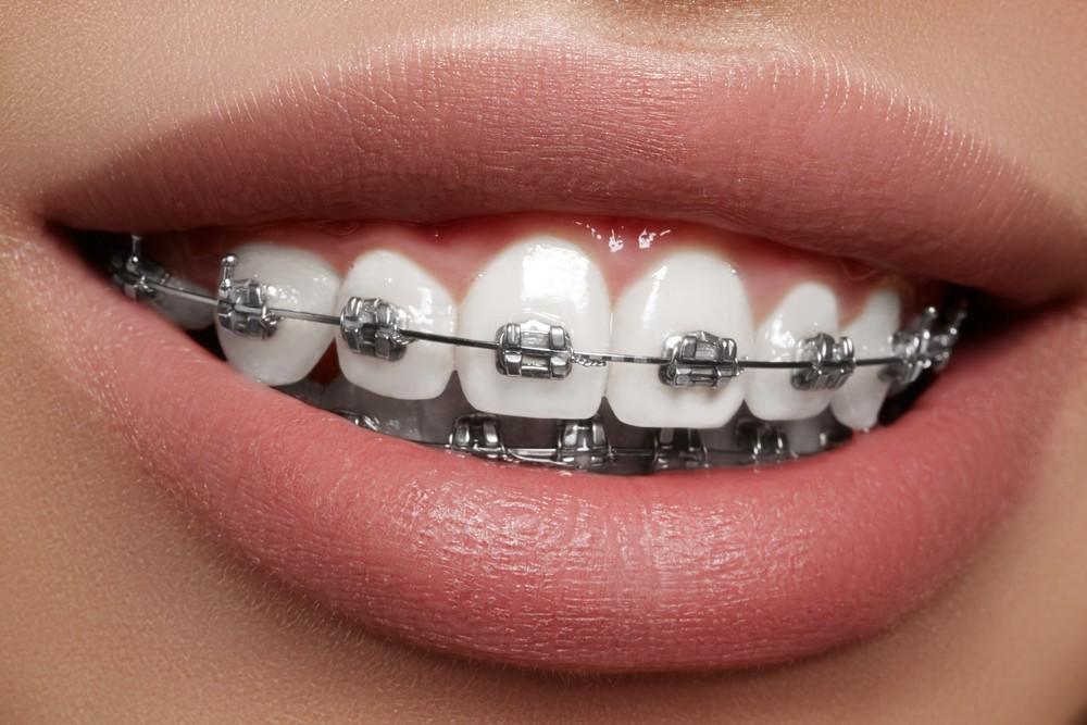 ortodontie bucuresti, aparat dentar bucuresti, aparat ceramic bucuresti, stomatologie bucuresti